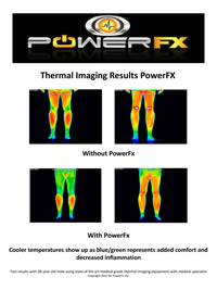 Wristbands Thermal Image Test